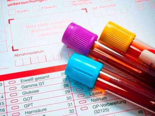 Mitos e verdades sobre exames laboratoriais